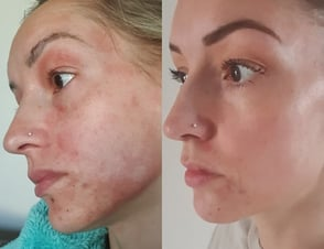 Before and after photo from UpCircle